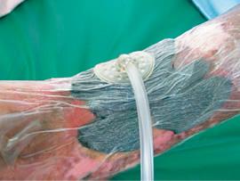 処置 閉鎖 陰 局所 圧 局所陰圧閉鎖療法は、どんなとき、どのように行う? :Part8