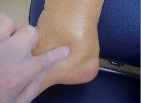 足 の むくみ 病気 高齢 者